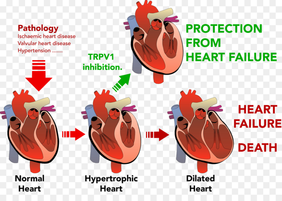 Heart Hypertrophy and Failure